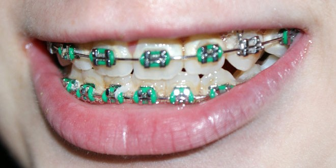 Wird die Rituelle Reinheit durch Zahnbluten unterbrochen
